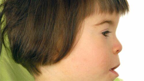 Studie zu FAS - Fetales Alkoholsyndrom bei Kindern
